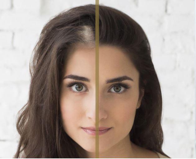 diradamento capelli donna prima e dopo