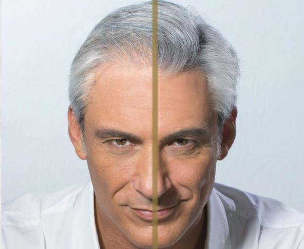 diradamento capelli prima e dopo